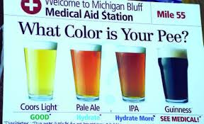 the color of urine is something that is or should be pretty important to a runner especially an ultra runner so what does it all mean - Rsine Colore